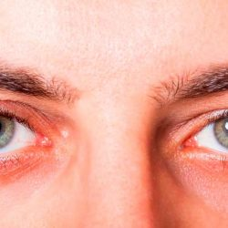 Como evitar la alergia ocular durante la primavera