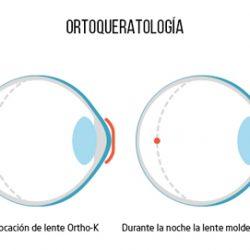 Las Lentes Orto K,también llamadas lentillas de ortoqueratología nocturna, son un tipo de lentes especiales nocturnas que utilizamos durante el sueño. Estas lentes tienen una curvatura especial realizada a la medida del paciente